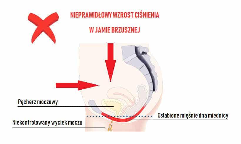 objawy wysiłkowego nietrzymania moczu